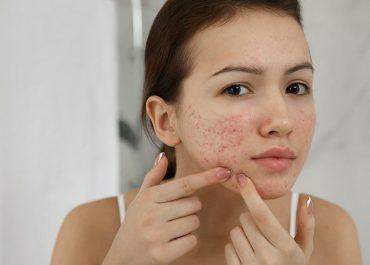 Поради дерматолога. «Вугрева хвороба»